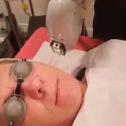 IlIumi Facial (Skin Rejuvenation)